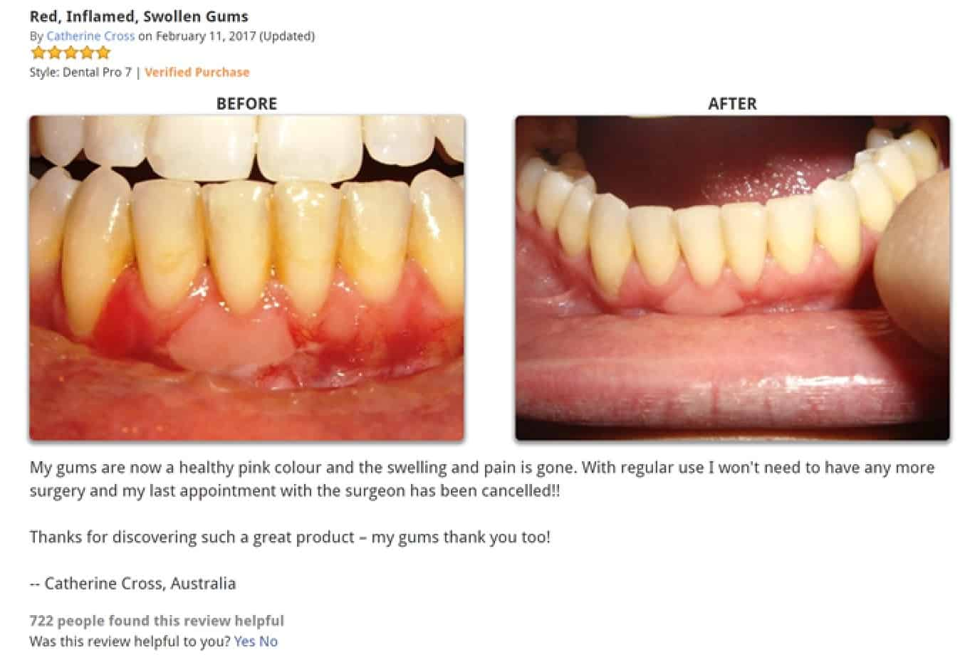 dental pro 7 review