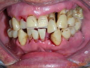 best treatment for gum disease