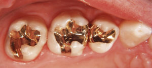 amalgam fillings dangerous