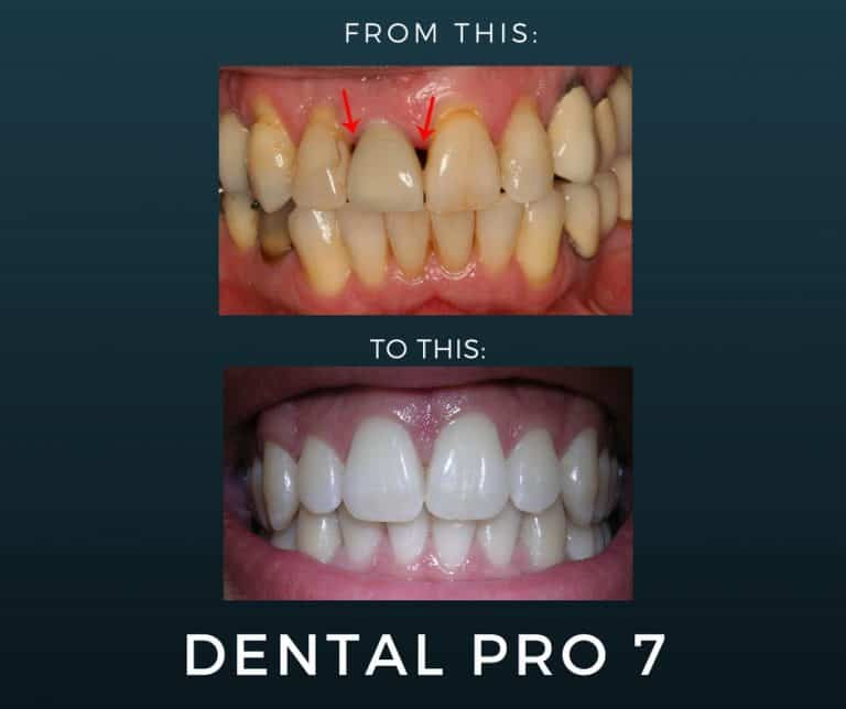 Best Treatment For Gum Disease – 1 Powerful Product!