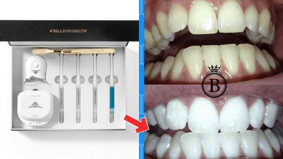 Best home teeth whitening kit