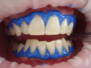 carbamide peroxide teeth whitening