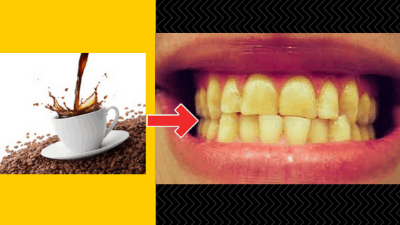 teeth whitening for coffee drinkers