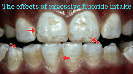 is fluoride bad for teeth