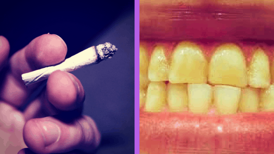 teeth whitening for smokers