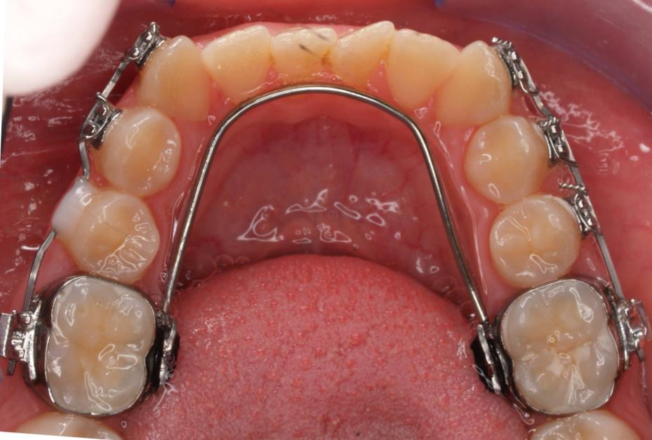 cleaning teeth with braces