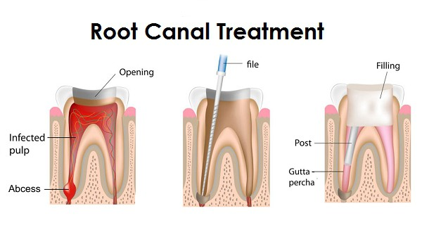 is getting a root canal painful