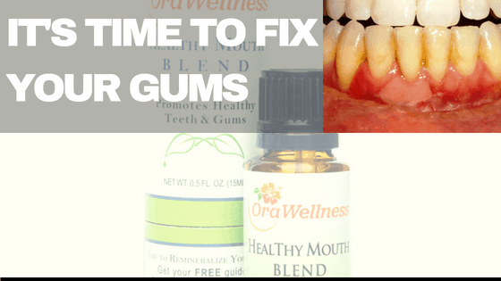 Natural Remedy For Gum Disease – All Organic And No Side effects!