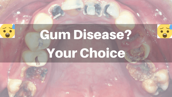 what can i do about gum disease