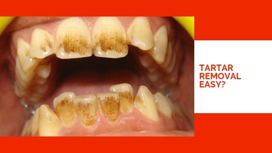How To Remove Tartar From Teeth Without Dentist