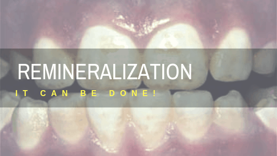 Remineralize teeth naturally