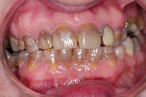 does tetracycline stain teeth