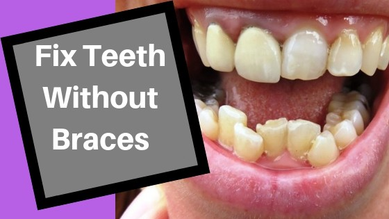 how to fix crooked bottom teeth without braces