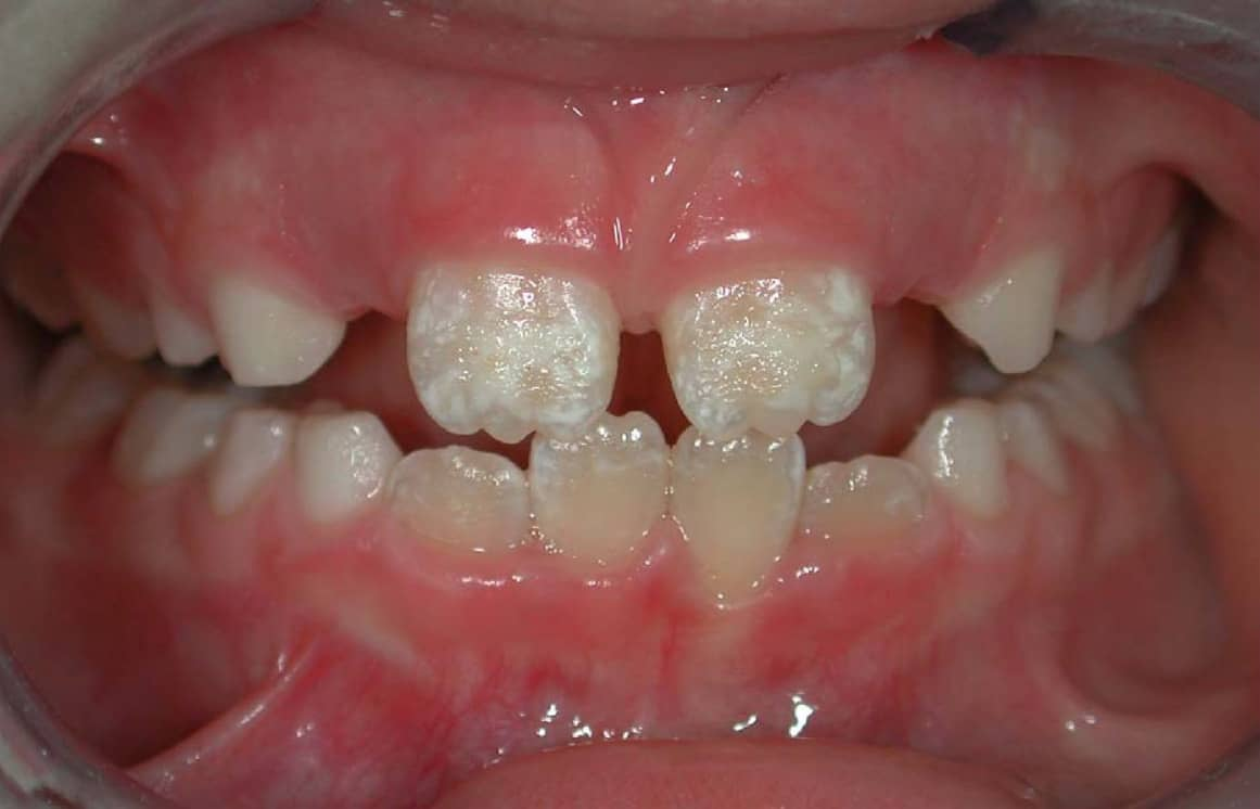 restoring tooth enamel naturally