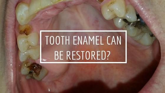 Is Restoring Tooth Enamel Naturally Possible Teethmastery