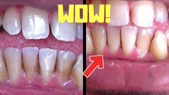 how to remove brown stains on teeth