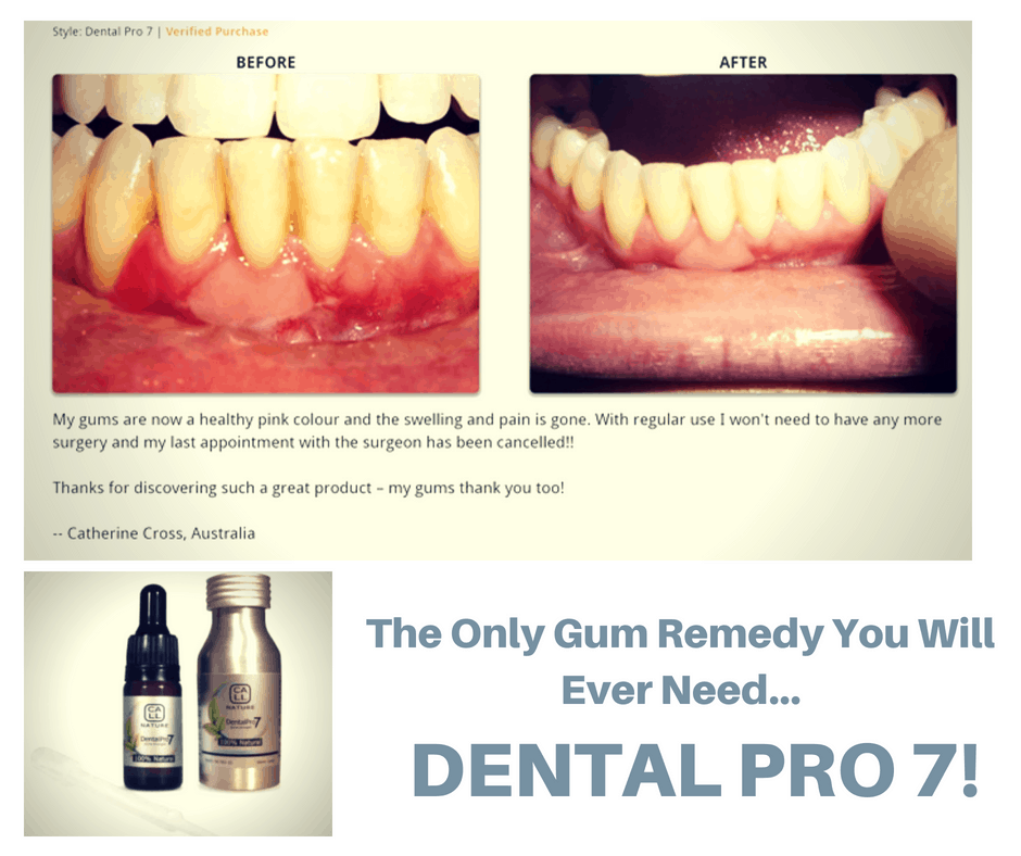 use dental pro 7