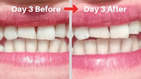 billionaire teeth whitening kit review picture day 3