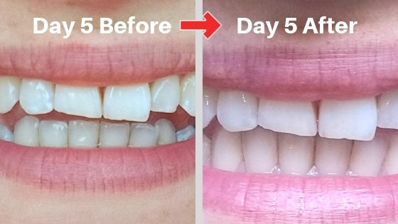 billionaire teeth whitening kit day 5 results