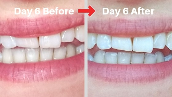 billionaire teeth whitening kit day 6 results