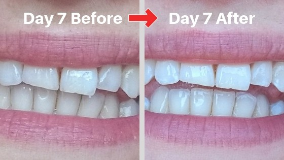 billionaire teeth whitening review picture 7