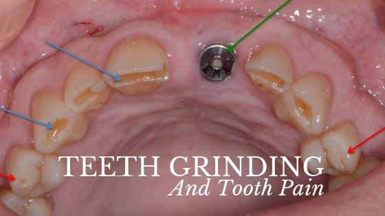 can grinding teeth cause tooth pain