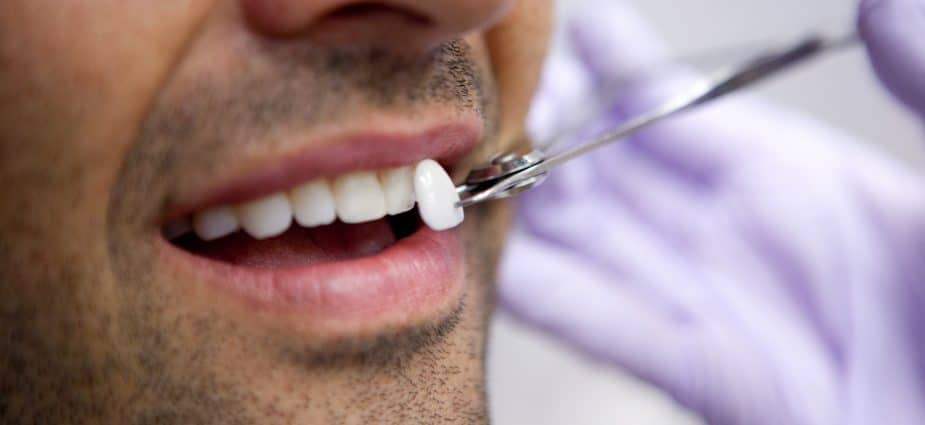 Porcelain veneers to remove white spots on teeth