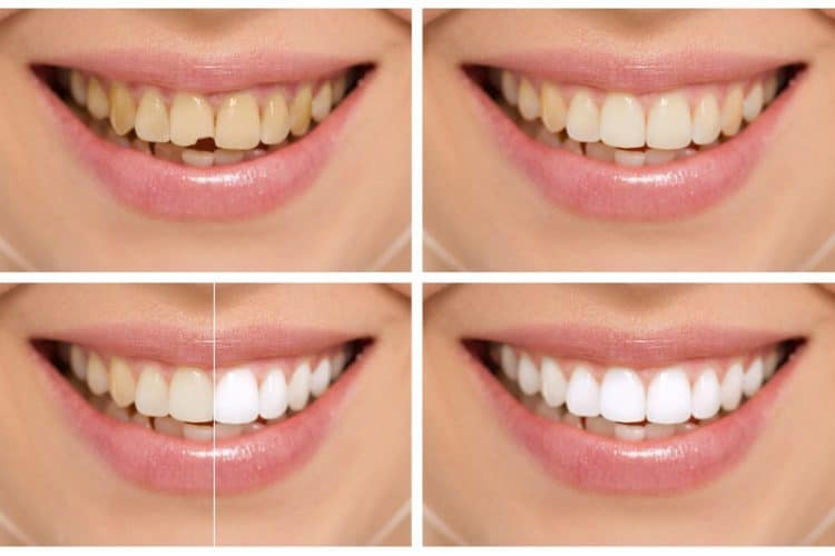 Bonding to remove white spots from teeth