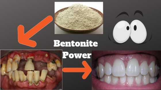 Bentonite for teeth and gums
