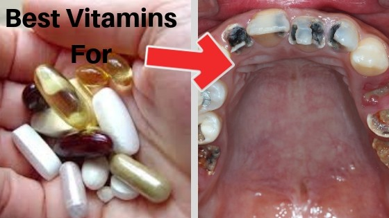 Best Vitamins For teeth and gums
