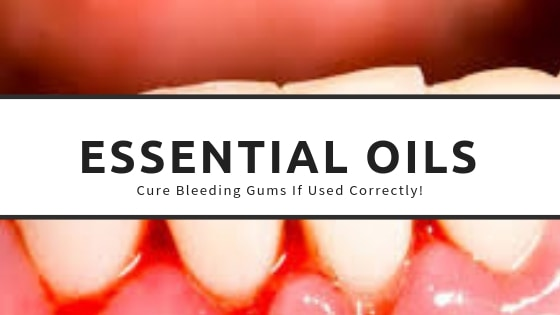 Using essential oils for bleeding gums