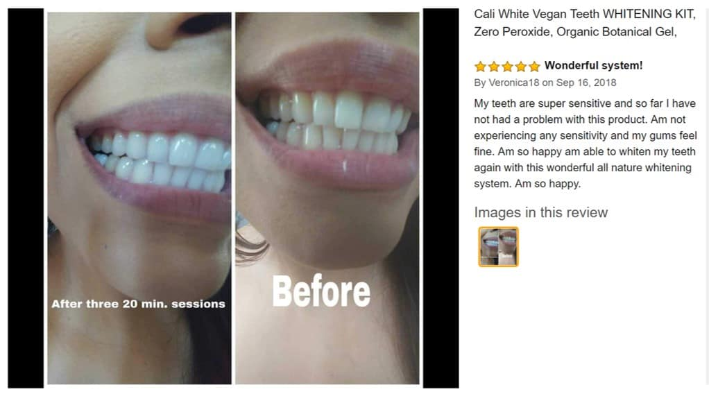 cali white teeth whitening kit review