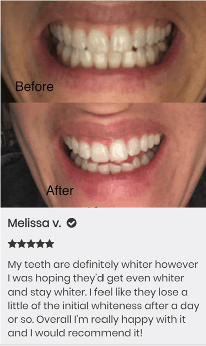 Warranty For  Snow Teeth Whitening