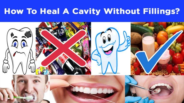 How to Heal A Cavity Without Fillings? – Do This Now And See Results!