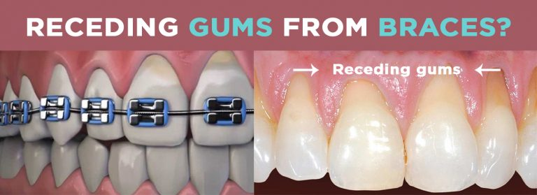 I Have Receding Gums From Braces – Help Me!