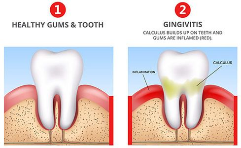 gingivitis-teeth