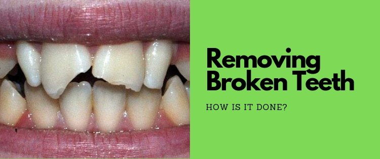 how do dentists remove broken teeth