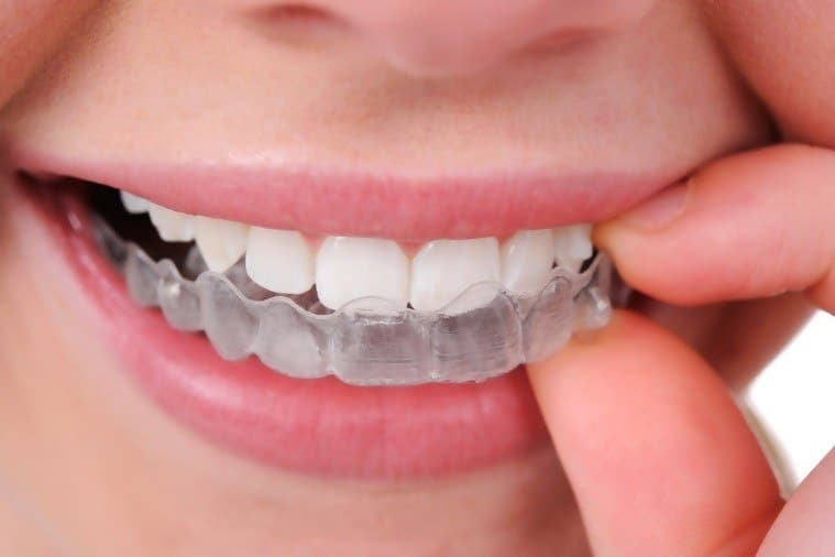 Invisalign teeth straightening options for adults