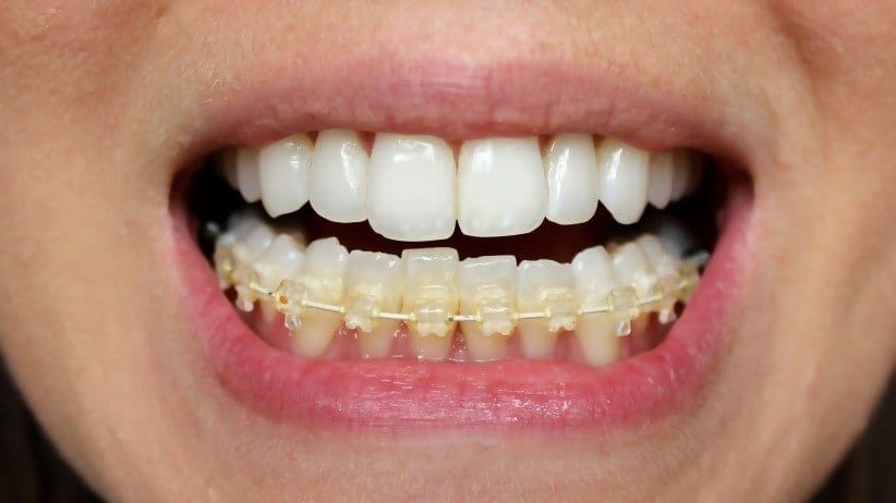 six month smiles teeth straightening for adults