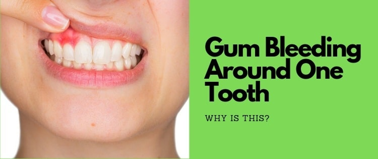 gum bleeding around one tooth when flossing