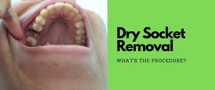 How Does A Dentist Treat Dry Socket? – Follow These Steps…