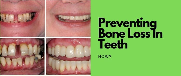 how to prevent bone loss in teeth