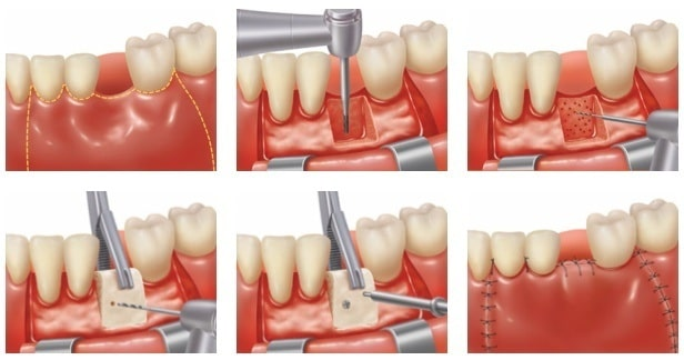 how to prevent further bone loss in teeth