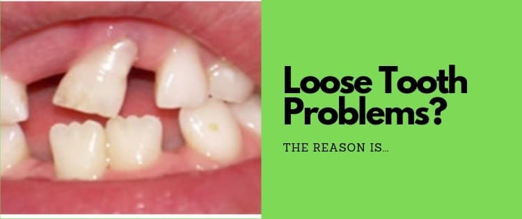 Stop A Loose Tooth From Falling Out Before It's Too Late!
