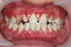 gum recession from braces