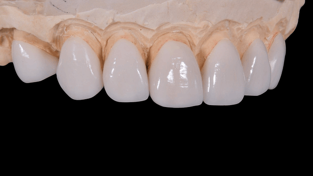 Can Teeth Fall Out After Deep Cleaning