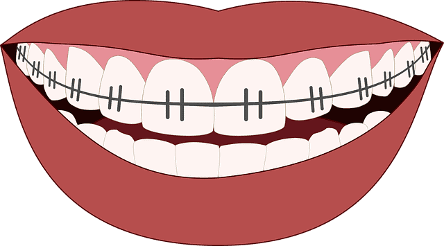 How Long Does it Take for Teeth to Shift?