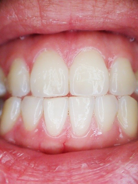 How Long To Leave Fluoride Varnish On Teeth