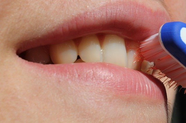 How Much Does Permanent Gold Teeth Cost