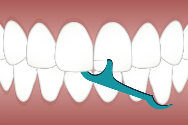 How Much Is Teeth Cleaning